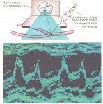 «Расширение» звука: инфразвук и ультразвук